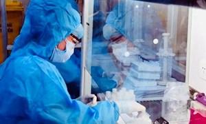 Xử lý nghiêm cơ sở y tế lợi dụng dịch bệnh để tăng giá xét nghiệm Covid-19
