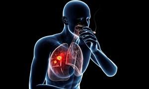 Cơ chế gây ung thư của khói thuốc lá