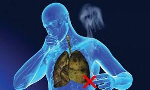 6/8 nguyên nhân gây tử vong hàng đầu liên quan đến thuốc lá