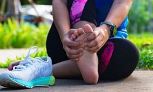 Biến dạng ngón chân cái khi chạy bộ thường xuyên, đừng chủ quan