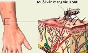 Khuyến cáo cách đề phòng dịch sốt xuất huyết