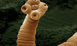 [Video] 6 đường nhiễm ký sinh trùng vào cơ thể