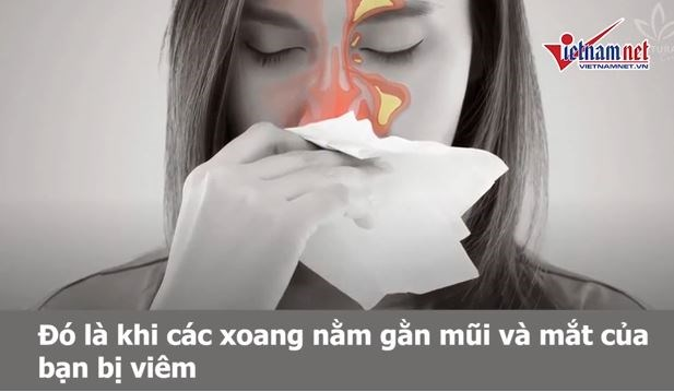 [Video] Tự trị viêm xoang ở nhà hiệu quả với 5 cách đơn giản