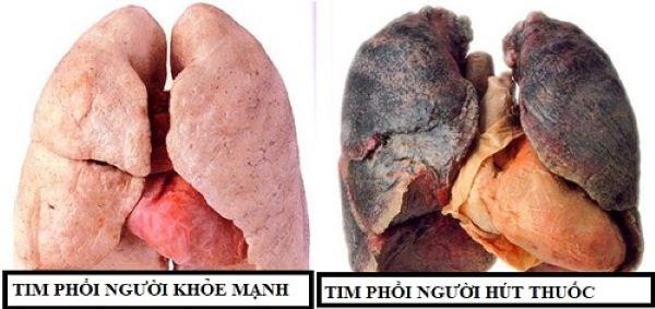 Nguy hiểm của khói thuốc lá trong đại dịch Covid-19