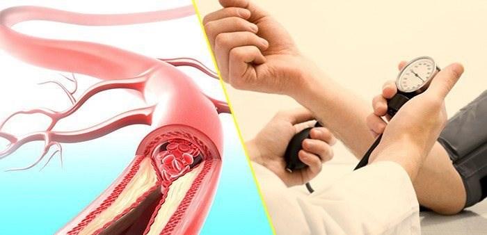 Phòng biến chứng của tăng huyết áp