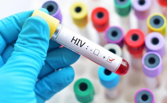Phát hiện chủng virus HIV mới