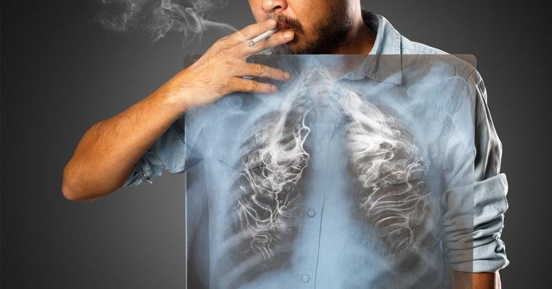[Infographic] Thuốc lá là nguyên nhân hàng đầu gây bệnh tim mạch
